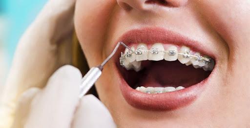 Konya Diş Teli Tedavisi- Diş Teli Fiyatları