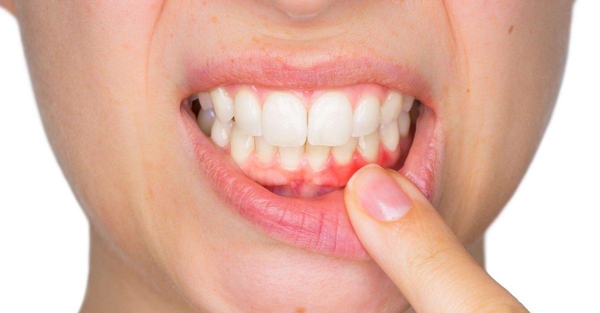 Diş Eti İltihabının Belirtileri Nelerdir