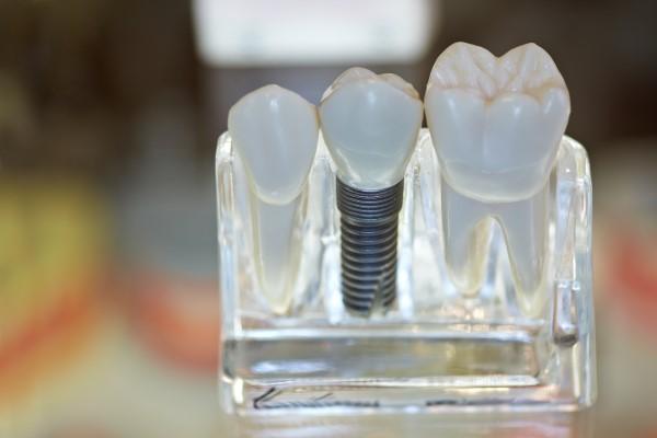 İmplant nedir ve implant hakkında bilinmesi gerekenler