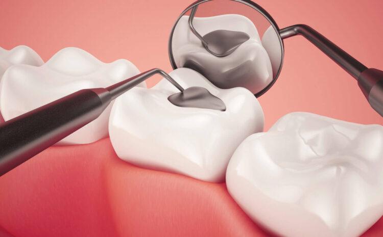 Diş Dolgusu Seçenekleri