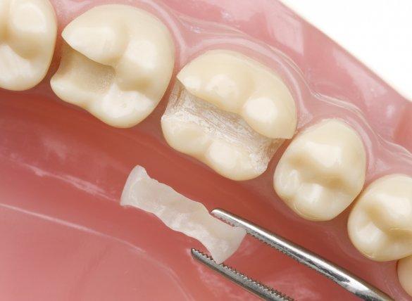 Konya Porselen Diş Dolgusu